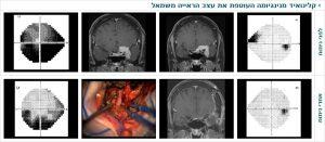 קלינואיד מנינגיומה העוטפת את עצב הראייה משמאל