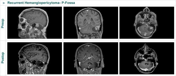 Recurrent Hemangiopericytoma- P-Fossa
