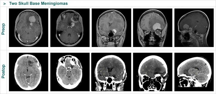 Two Skull Base Meningiomas