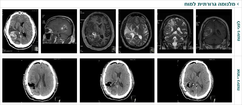 מלנומה גרורתית למוח