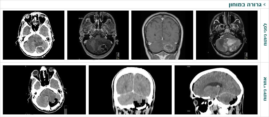 cerebellar_metastasis