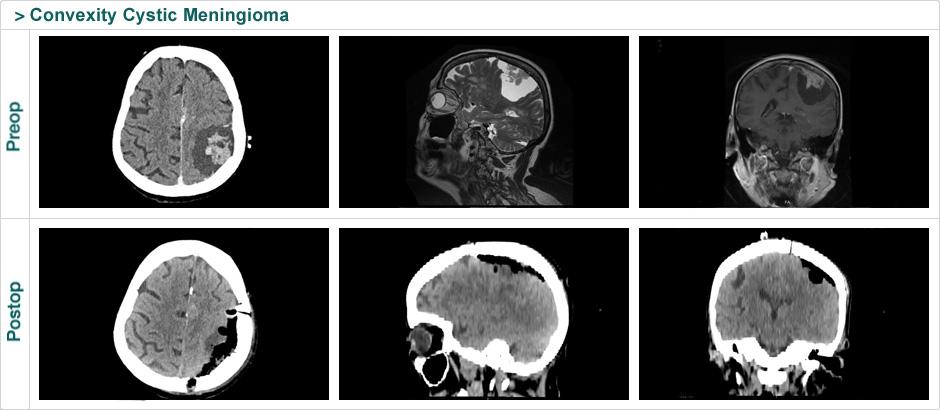 convexity_cystic_meningiom