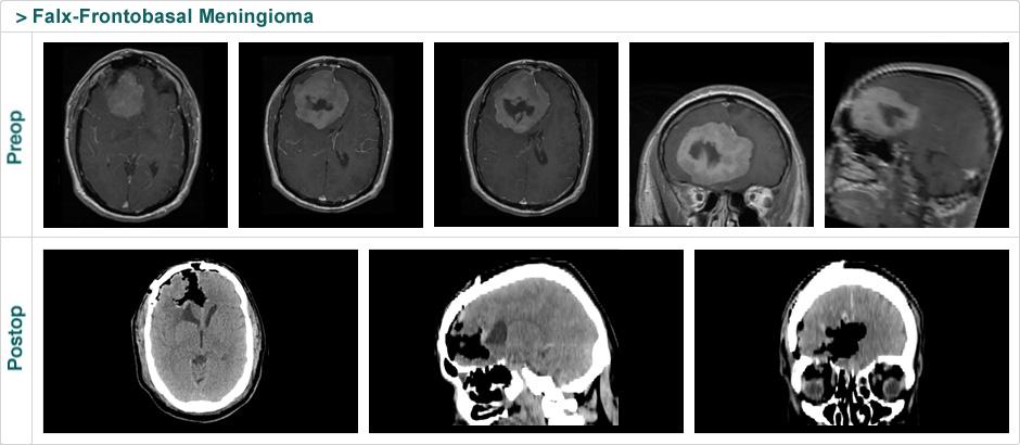 falx_frontobasal_meningioma