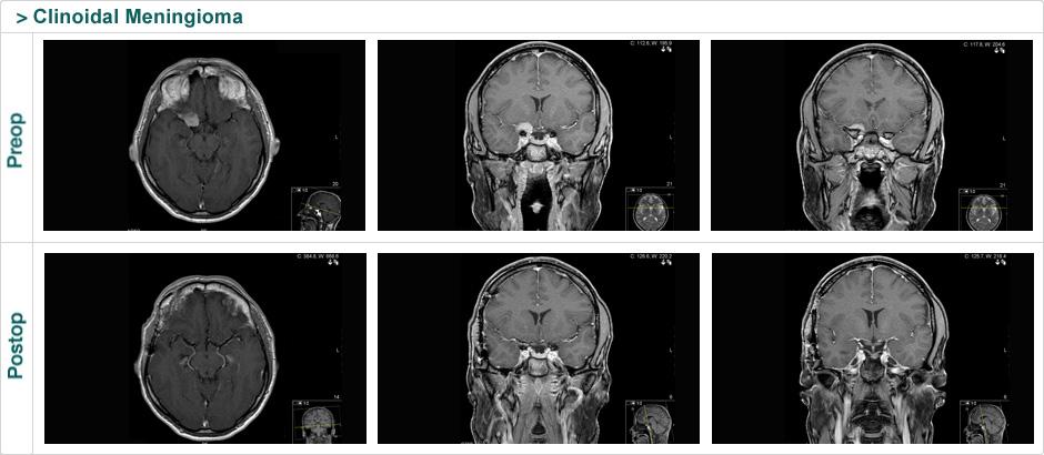 eng_klinoid_meningioma