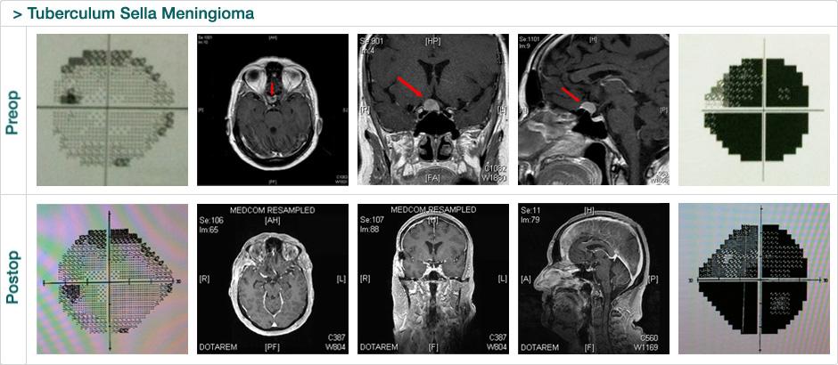 tuberculum_sela_meningioma