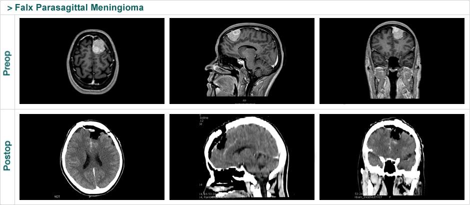 falx_parasagittal_meningioma