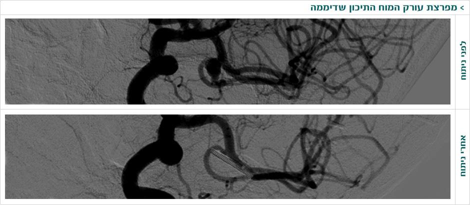 מפרצת עורק המוח התיכון שדיממה