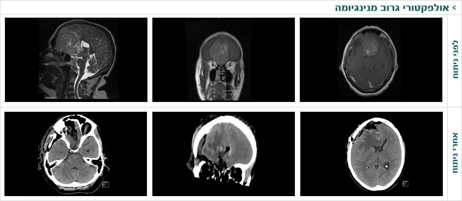 olfactori_groov_meningioma