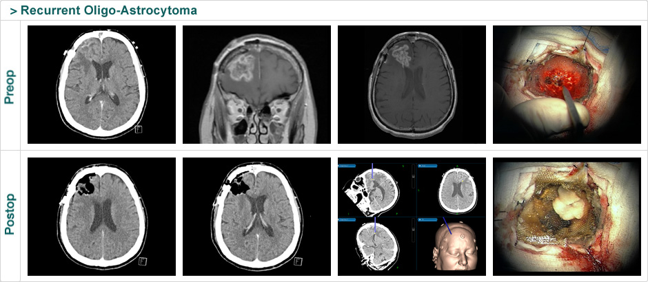 recurrent-oligo-astrocytoma