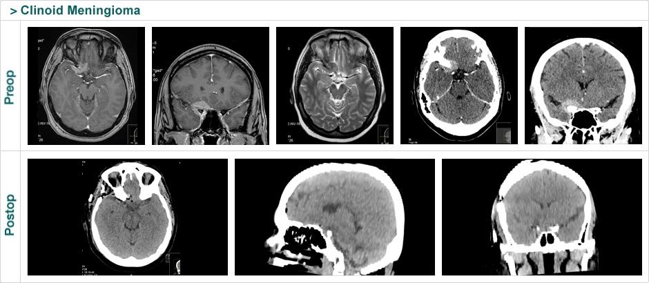 clinoid meningioma
