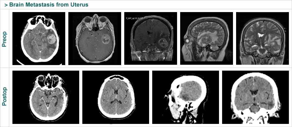 brain_metastasis_from_uterus