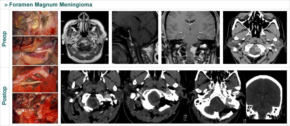 foramen_magnum_meningioma