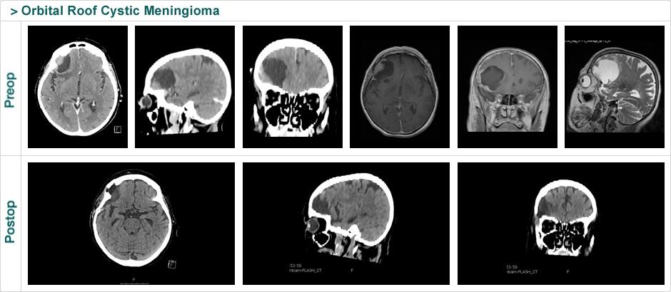 orbital_roof_cystic_meningioma