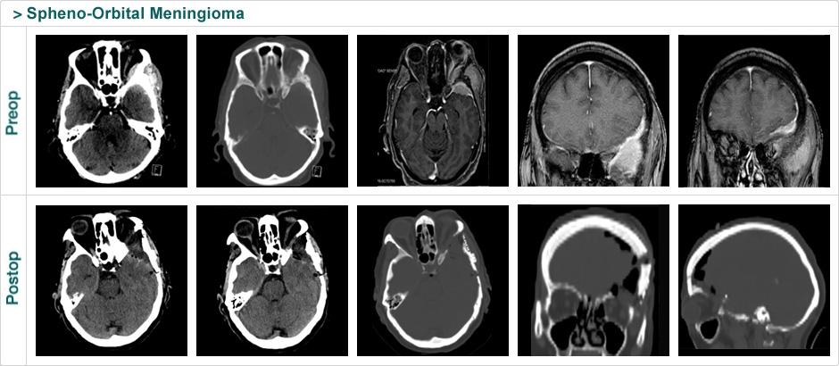 spheno_orbital_meningioma