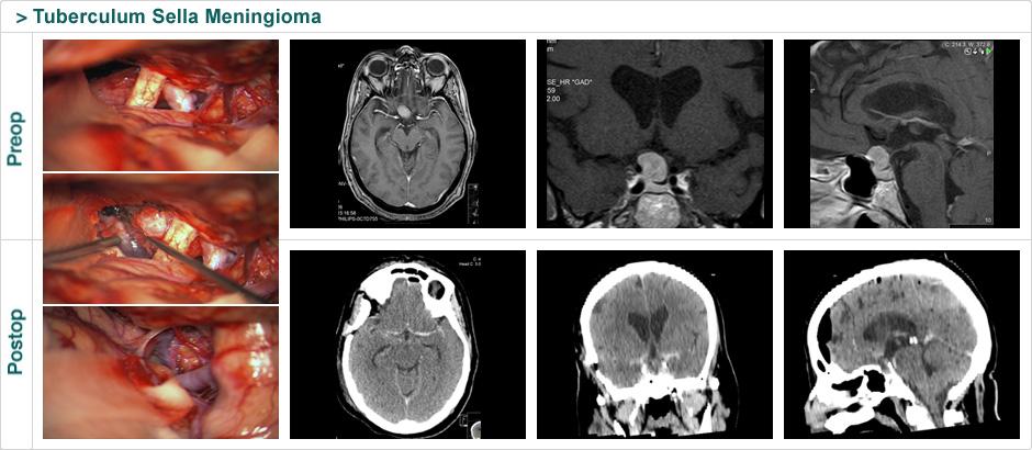 tuberculum_sela_meningioma2