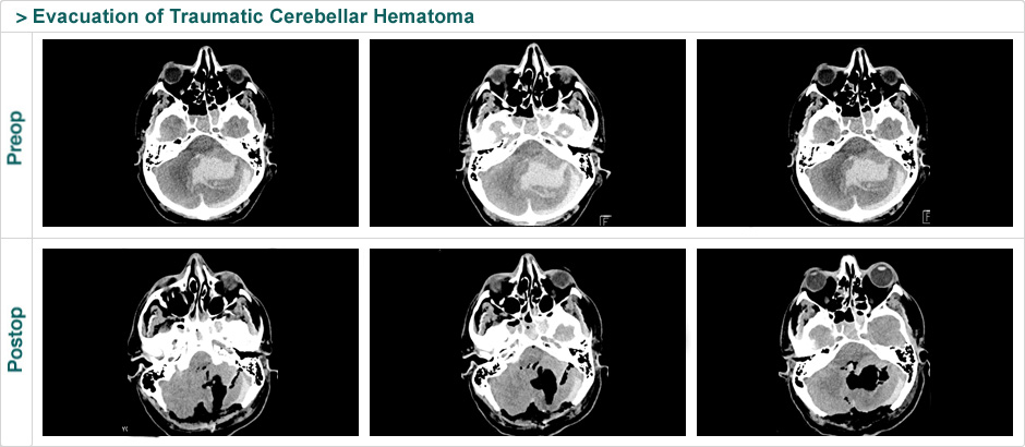 evacuation of traumatic cerebellar hematoma