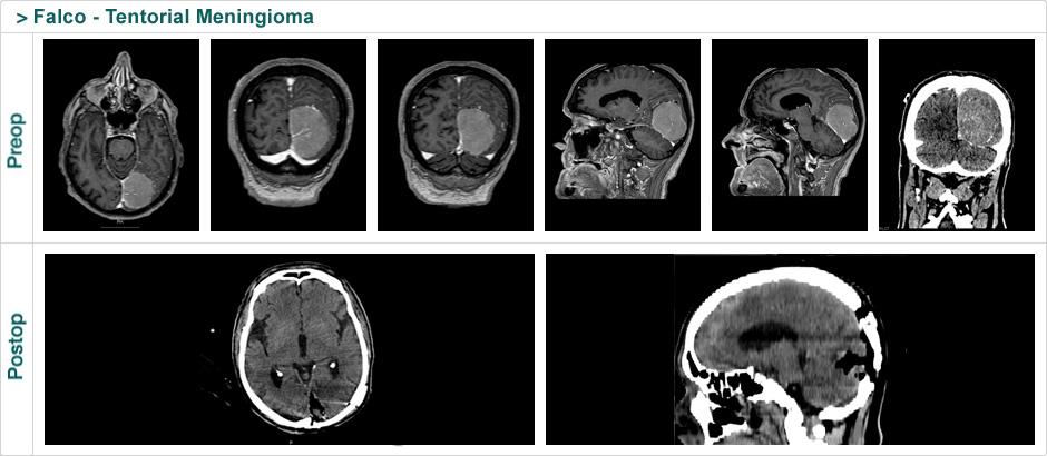 falco_tentorial_meningioma
