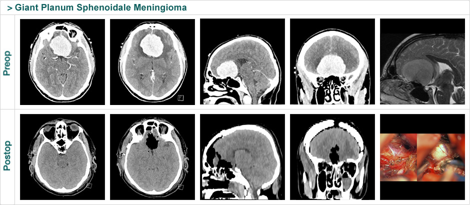 giant_planum_sphenoidale_meningioma