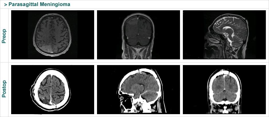 parasagittal_meningioma_2