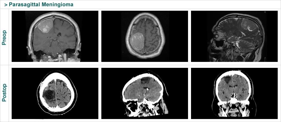 parasagittal_meningioma